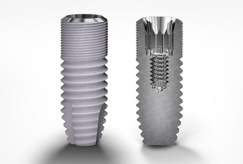 Deep Conical Connection Cylindrical Implants