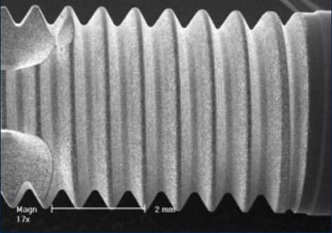 Implant Surface