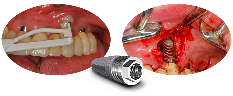 Challenge, Peri-Implantitis Risk Management