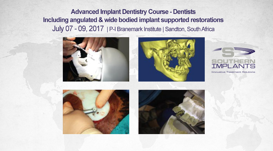 July 07-09, 2017 – Advanced Implant Dentistry Course – Sandton, South Africa – Southern Implants Professional Education
