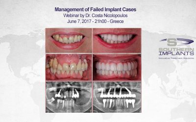 June 7, 2017 – 21h00 – Greece – Webinar – Southern Implants Professional Education
