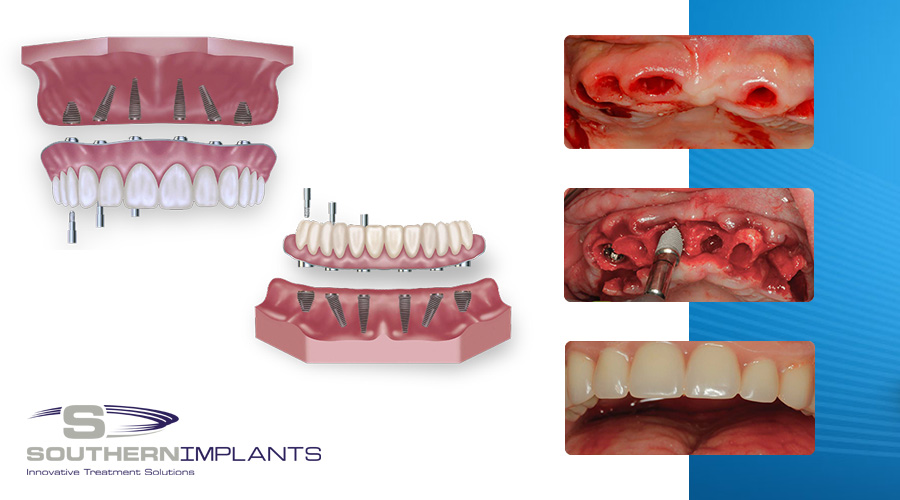 Immediate Full Arch Rehabilitation with Southern Implants