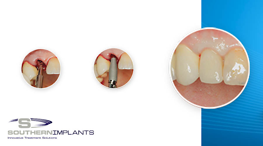 Predictable Anterior Aesthetics with Southern Implants