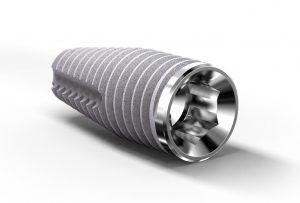 Provata Implant