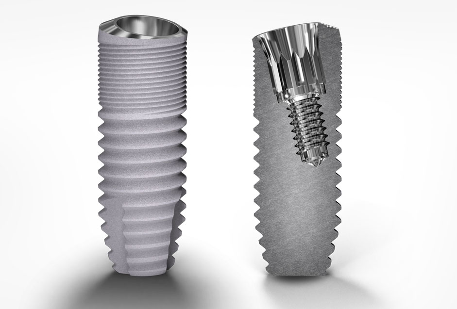 Deep Conical Co-Axis® Implantat