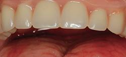 Återställ Implantat