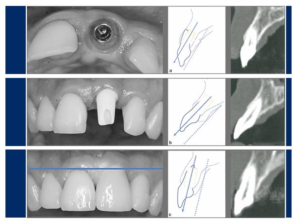 anatomiska begränsningar av anterior maxilla