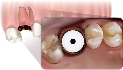 Simplicity in predictable molar rehabilitation