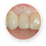 Restore Implant