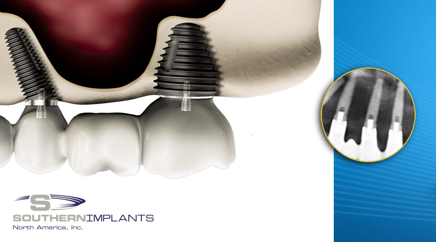 Predictable Anterior Aesthetics with Dental Implants