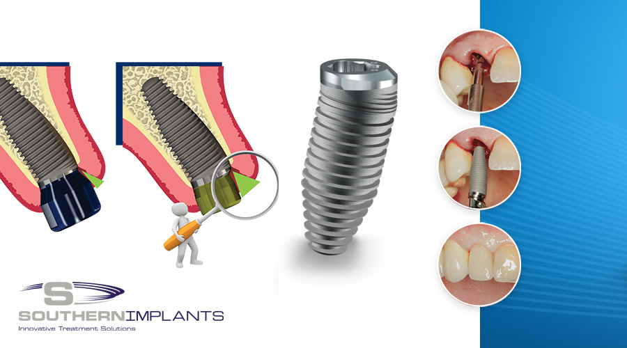 Dental Implants, Dental Education, Southern Implants Education, Dental Industry, SINA, Southern Implants, Southern Implants North America, Periodontists , CoAxis. Predictable Anterior Aesthetics
