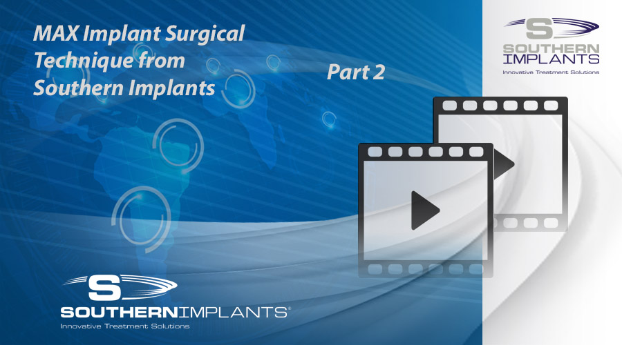 Webinar Part 2: MAX Implant Surgical Technique from Southern Implants