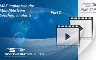 Webinar Part 3: MAX Implants in the Mandible from Southern Implants