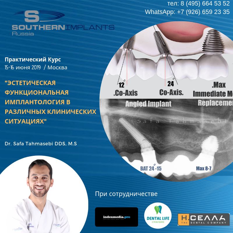 Hands on - placement of Co-Axis 12° / placement of MAX implant