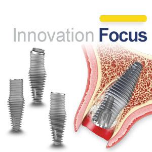 Innovation Focus