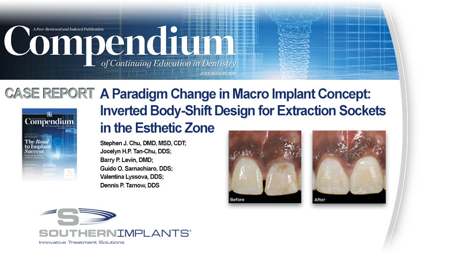 Another Peer Reviewed Article for the INVERTA™ Implant is Published, Check it out Here!