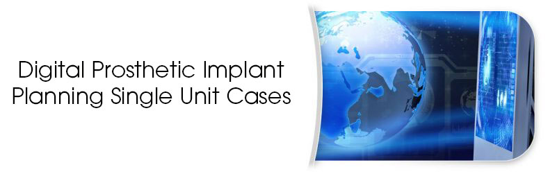 Digital Prosthetic Implant Planning Single Unit Cases