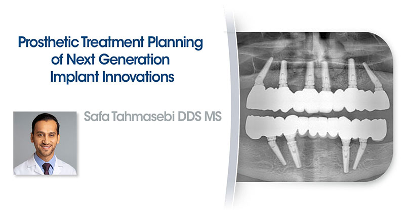Prosthetic Treatment Planning of Next Generation Implant Innovations