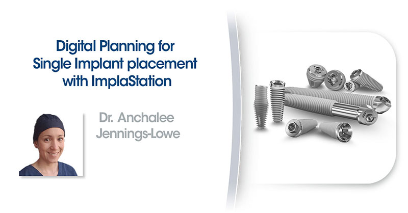 Digital Planning for Single Implant Placement with ImplaStation