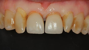 Pre-operative clinical status. Keratinized gingiva surrounds the fractured tooth.