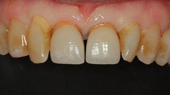Preoperativ klinisk status. Keratiniserad tandkött omger den brutna tanden.