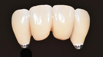 Definitive 4 unite fixed partial denture  in monolithic zirconia and passive abutment.