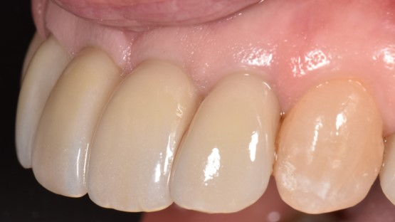 The definitive fixed partial denture in place. The restoration was tightened to 35 Ncm.