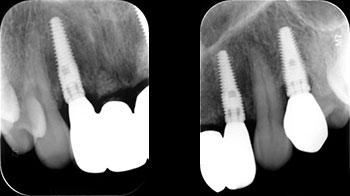 3 år följer upp röntgenbilder